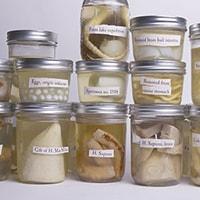 Organ Specimen Jars